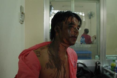 Anh Thược gần như bị mù mắt phải sau khi bị tạt axit