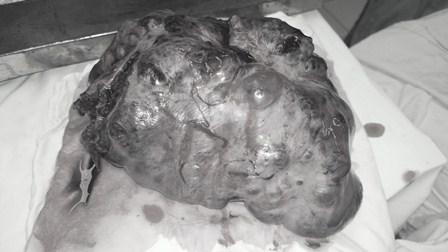 Khối u đã được mổ lấy ra từ cơ thể bé gái 13 tuổi