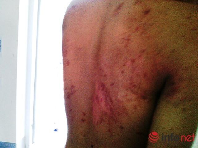 Kiến cắn sau lưng, vết thương lan rộng ra nhiều vị trí cơ thể.