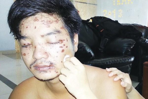 Tạt axit, tội ác phẫn nộ nhất trong năm 2013