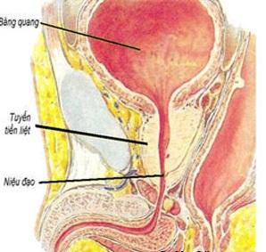 Sự phì đại của tuyến tiền liệt gây ra một số triệu chứng rối loạn tiểu tiện.