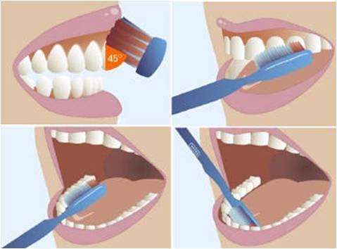 Đặt bàn chải nghiêng một góc 45 độ với hàm răng, chải theo chiều từ chân răng đến mặt nhai