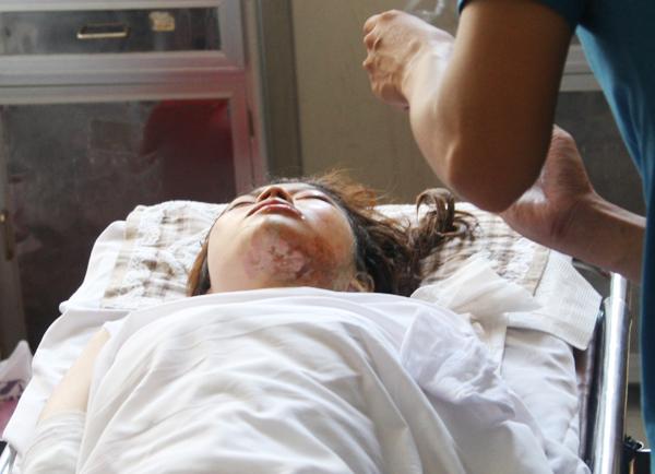Hồng Kim Huôi bị Dũng tạt axit vào mặt đang điều trị tại bệnh viện Chợ Rẫy. Ảnh: Châu Thành