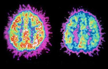 Não của người bị tăng động giảm chú ý (phải) và não của người bình thường (trái).