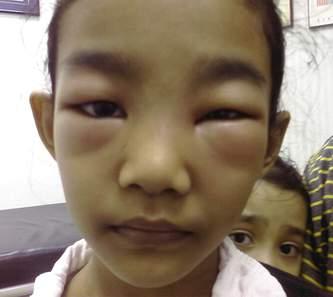 Phù mặt, đặc biệt phù đôi mắt trong bệnh thận hư.