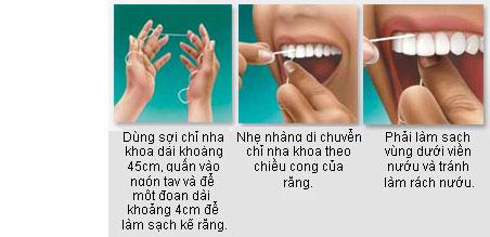 Cách dùng chỉ nha khoa