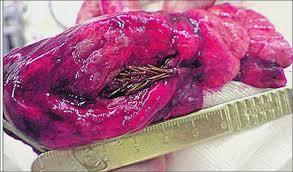 Khối u lại trong phổi của bệnh nhân Artyom Sidorkin
