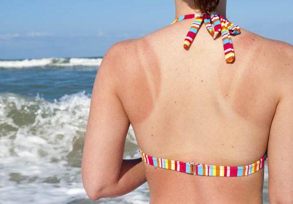 Cháy nắng là chấn thương thường gặp trong thời tiết nắng nóng.