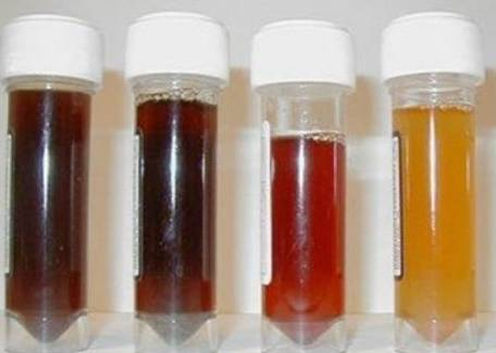 Các mức độ của máu trong nước tiểu.