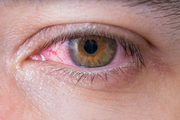 Phòng và điều trị đau mắt đỏ sau mưa lũ - Ảnh 1.