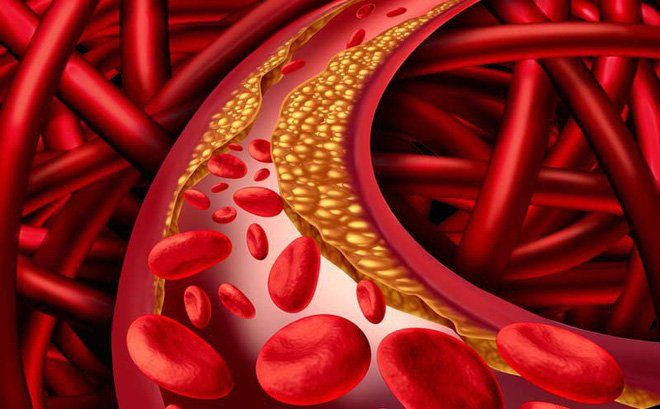 Mỡ máu cao có thuốc nào để trị? - Ảnh 1.