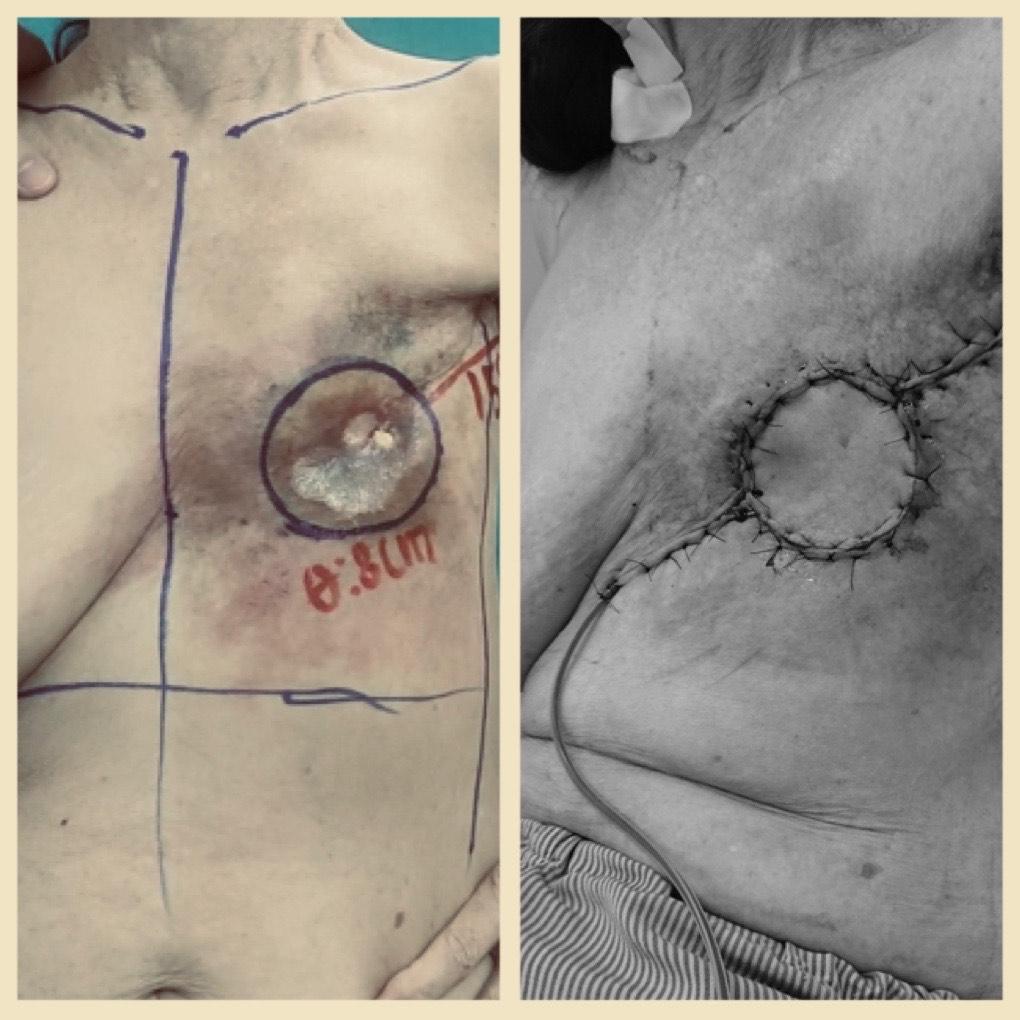 """Tạo hình """"lỗ hổng"""" thành ngực do loét sau 20 năm điều trị ung thư vú cho bệnh nhân 76 tuổi   - Ảnh 2."""