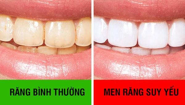 Đánh răng thôi chưa đủ, làm thêm 10 mẹo này giúp bạn có hàm răng chắc khỏe - Ảnh 3.