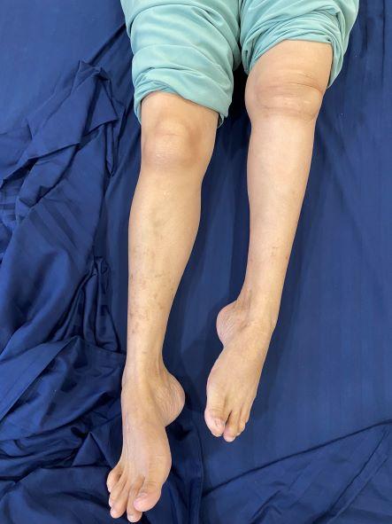 Lần đầu tiên thay thế thành công xương khớp nhân tạo in 3D cho bệnh nhân khuyết tật suốt 18 năm - Ảnh 1.