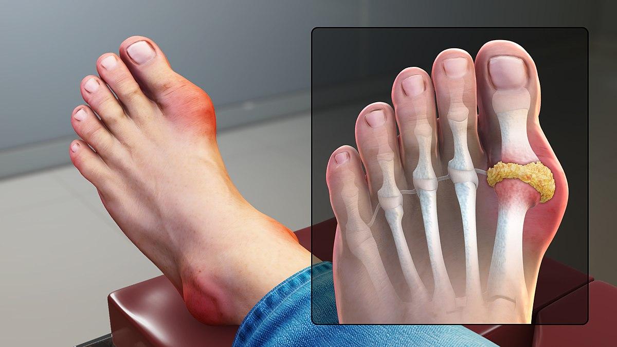 Thuốc trị bệnh gout: Những điều cần biết - Ảnh 1.