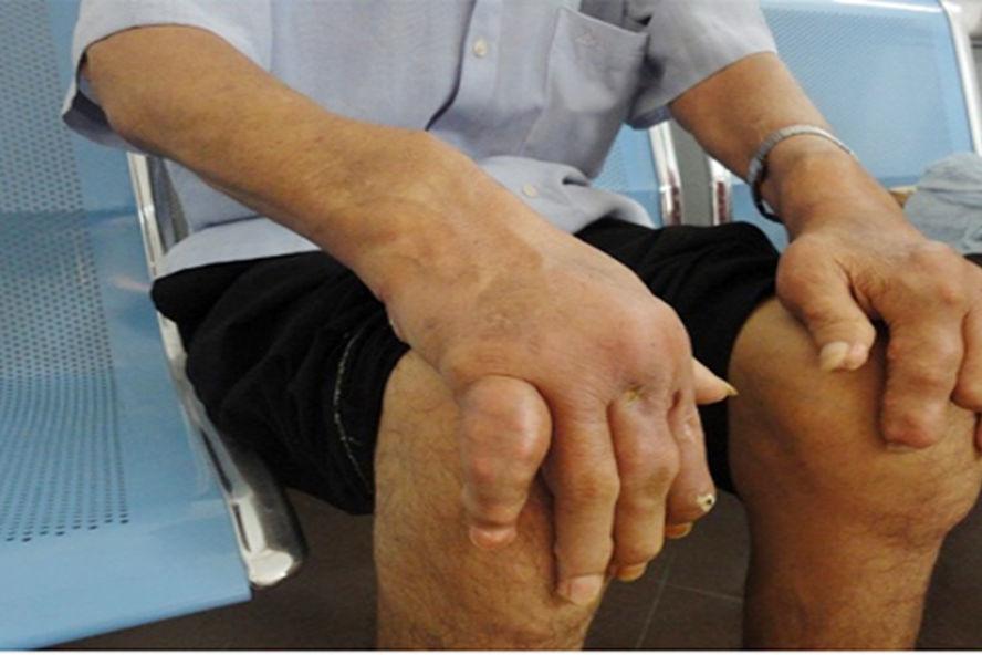 Thuốc trị bệnh gout: Những điều cần biết - Ảnh 4.