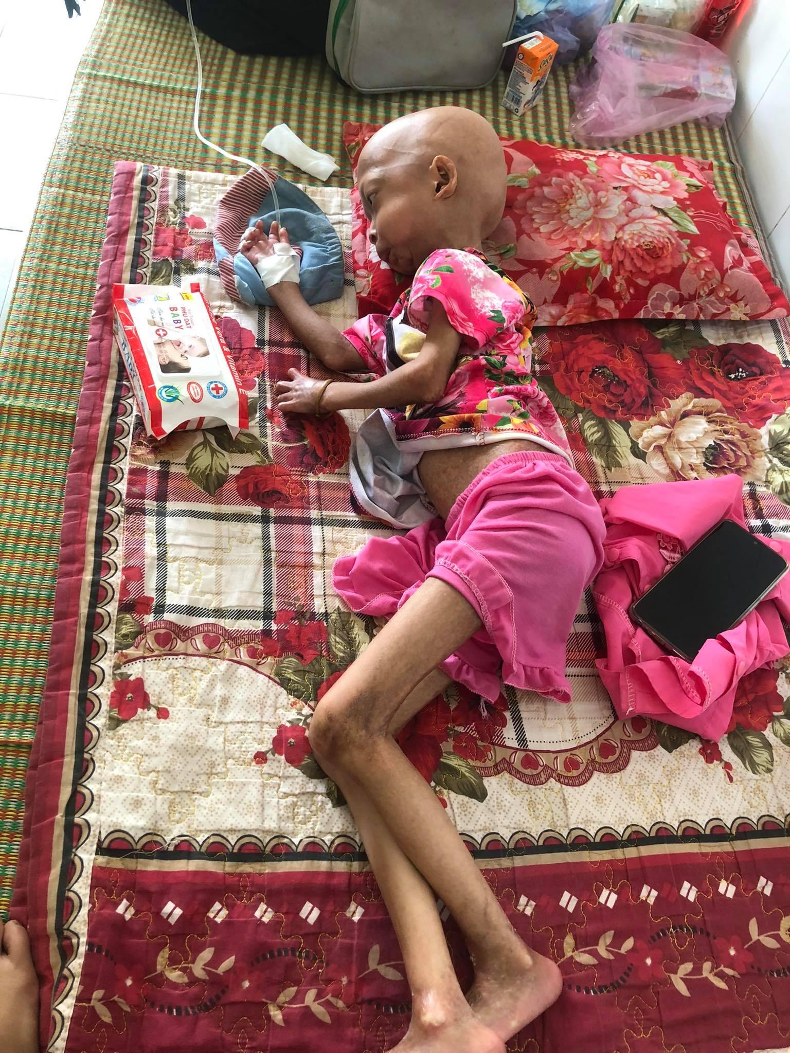 Xót xa bé gái dân tộc chân tay teo tóp, đầu không cọng tóc vì bệnh lạ không tiền điều trị - Ảnh 2.