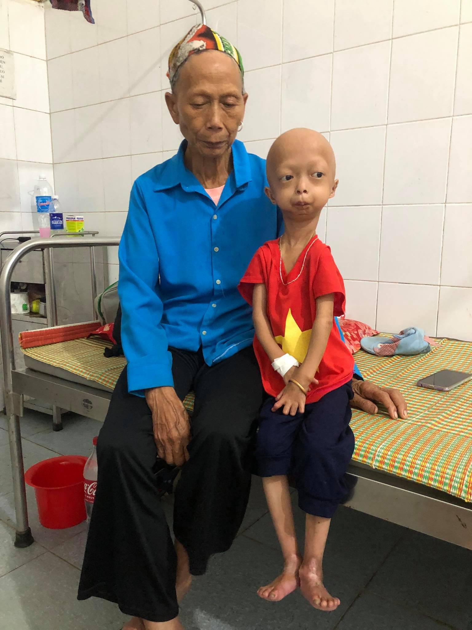 Xót xa bé gái dân tộc chân tay teo tóp, đầu không cọng tóc vì bệnh lạ không tiền điều trị - Ảnh 3.