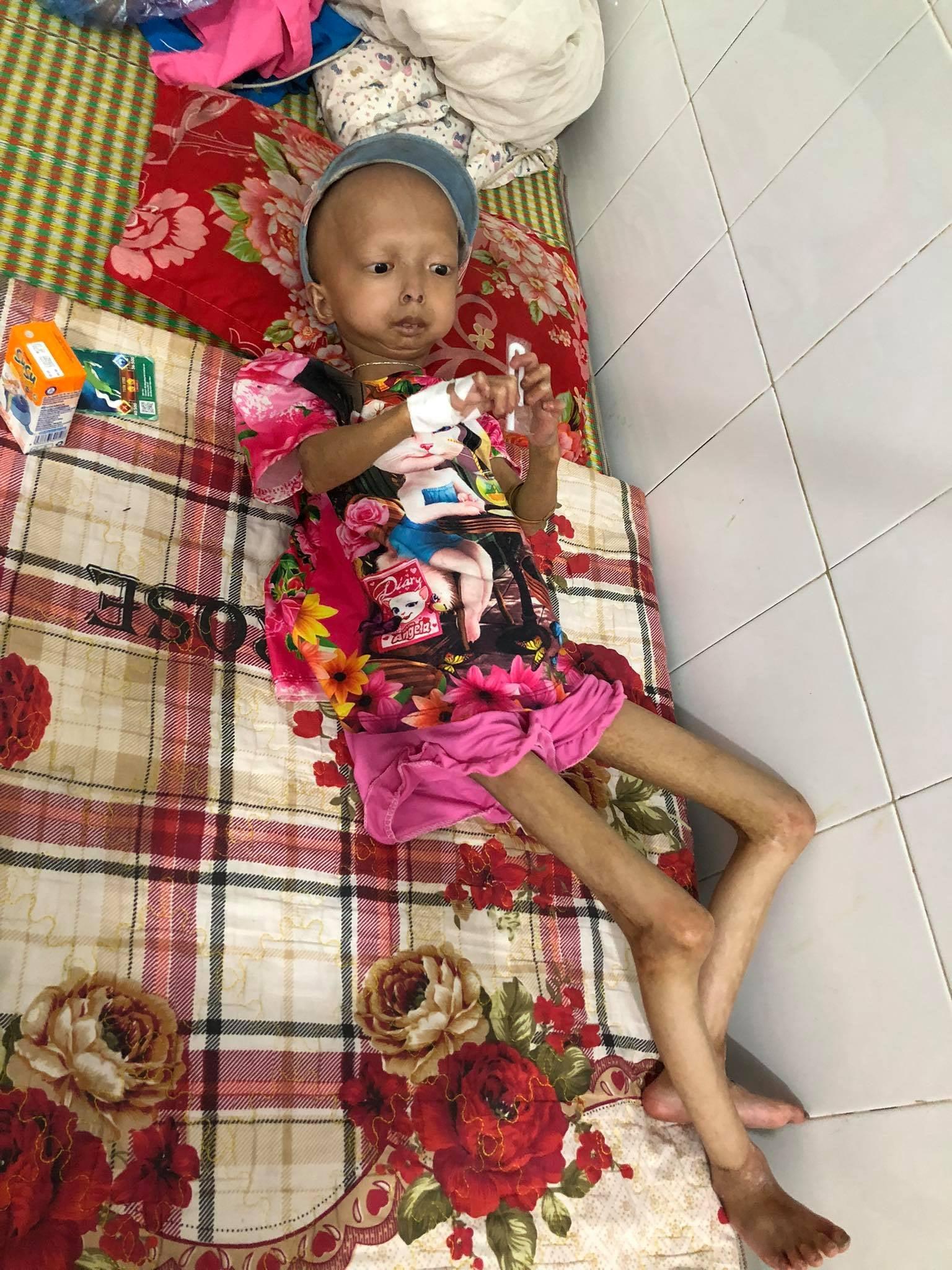 Xót xa bé gái dân tộc chân tay teo tóp, đầu không cọng tóc vì bệnh lạ không tiền điều trị