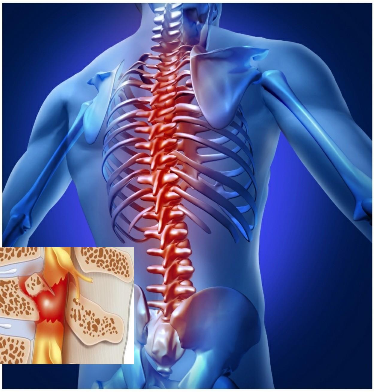 Sau tổn thương tủy sống - Giúp người bệnh kiểm soát cơn đau, hòa nhập cộng đồng - Ảnh 3.