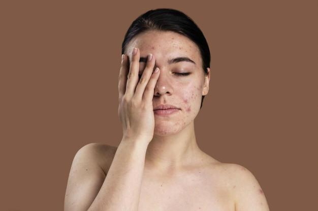 Những thay đổi thường gặp ở da khi mang thai - Ảnh 2.