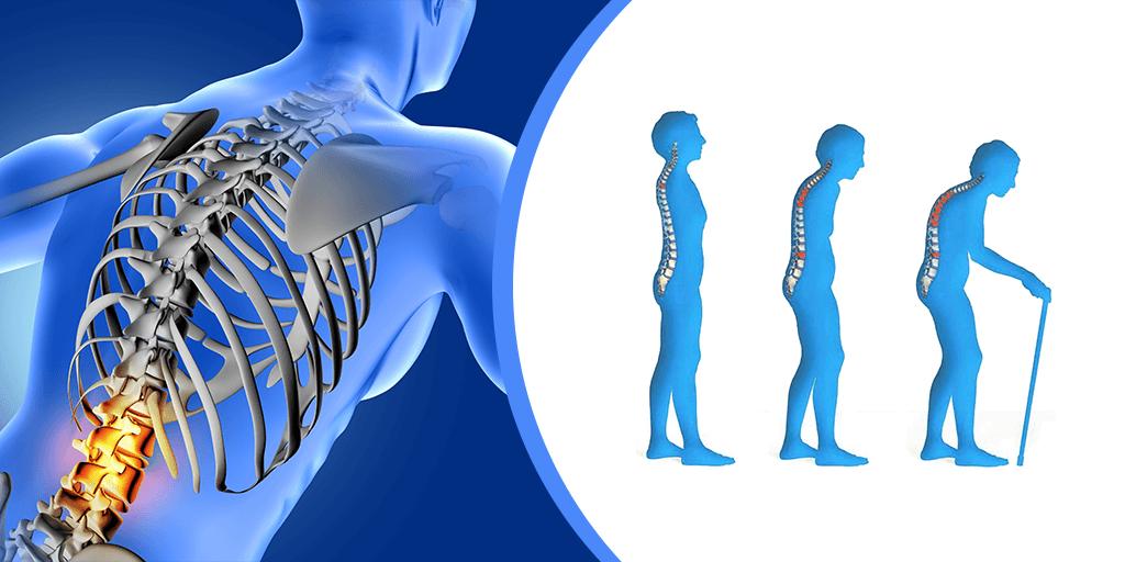 Loãng xương và những lưu ý khi dùng thuốc điều trị - Ảnh 1.