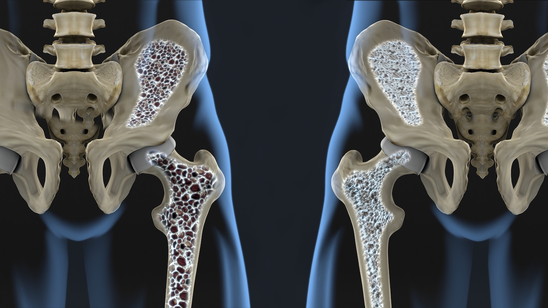Loãng xương và những lưu ý khi dùng thuốc điều trị - Ảnh 2.