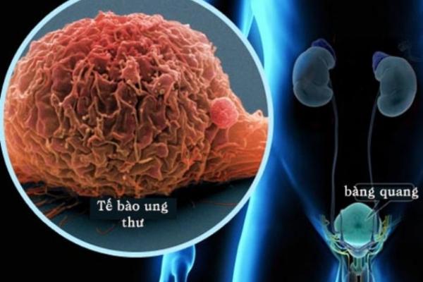 (Test) Chuyên gia khuyến cáo- Bệnh nhân ung thư tiết niệu cần làm gì trong dịch COVID-19? - Ảnh 2.