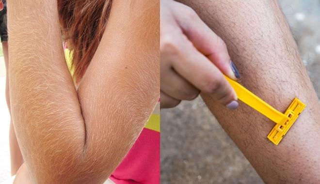 Phụ nữ rậm lông - Nguyên nhân và cách khắc phục - Ảnh 1.