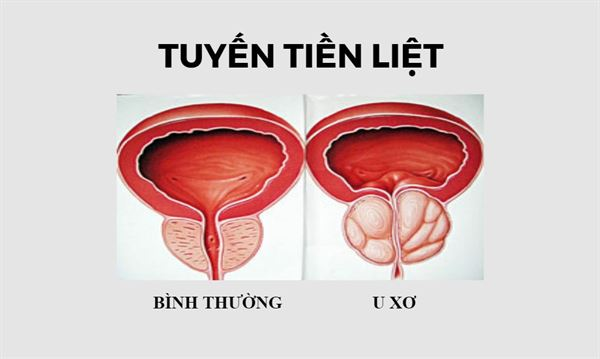 U xơ tuyến tiền liệt - Hệ lụy và phương pháp điều trị - Ảnh 1.