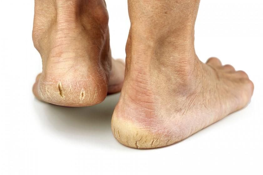 8 vấn đề thường gặp với bàn chân tuổi già - Ảnh 1.