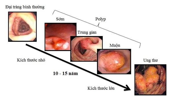 Các yếu tố nguy cơ của ung thư đại trực tràng  - Ảnh 3.