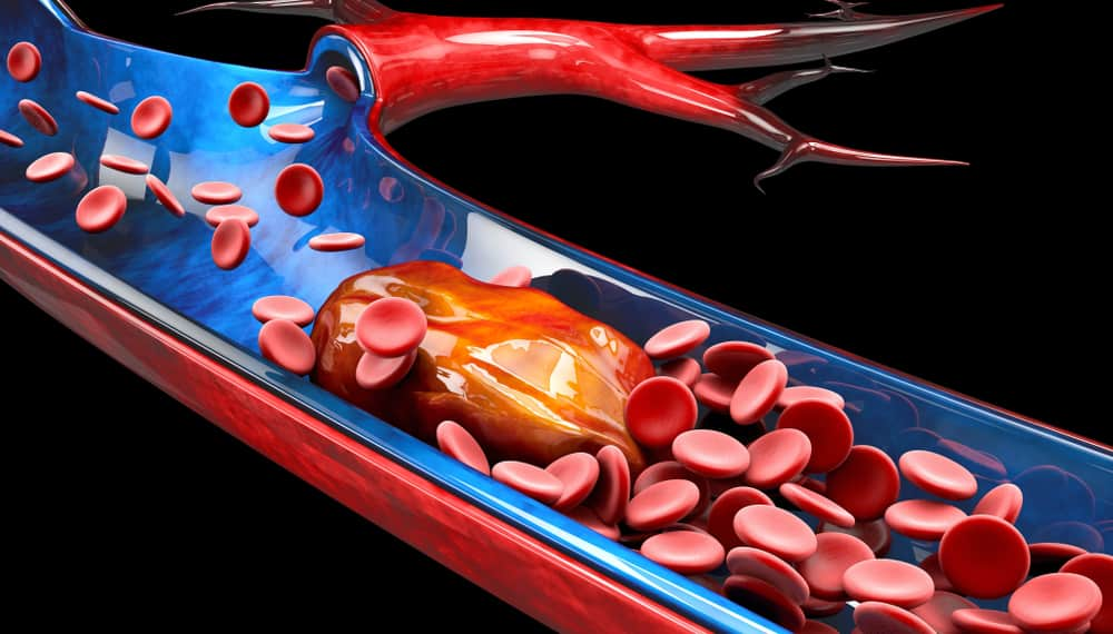 Dùng thuốc chống đông máu điều trị COVID-19 lợi ích và rủi ro - Ảnh 2.