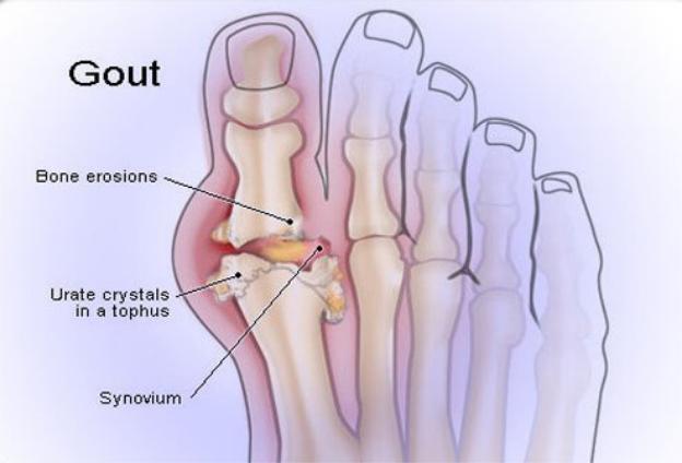 Bệnh gút là một loại viêm khớp do sự hình thành các tinh thể axit uric trong khớp và gây đau đớn.jpg