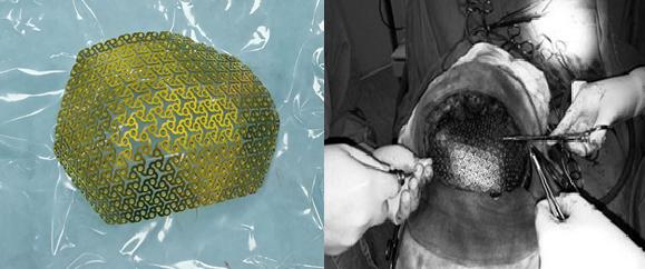 Phẫu thuật tạo hình khuyết hổng xương sọ bằng công nghệ 3D - Ảnh 2.
