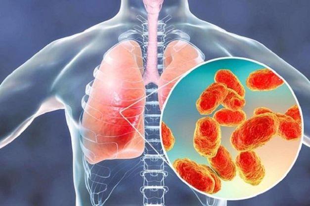 Tư bổ phế thận âm hư sau viêm phổi - Ảnh 1.