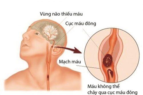 Mắc COVID-19 và nguy cơ đột quỵ não cấp - Ảnh 2.