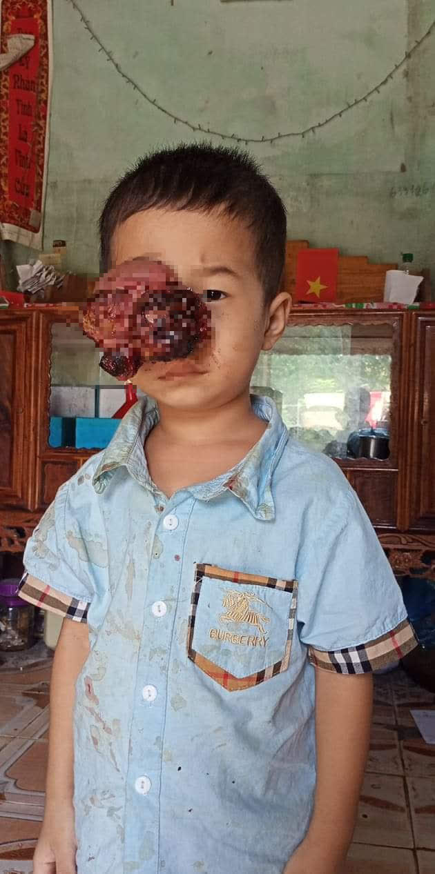 Đau lòng nhìn em bé dân tộc bị khối u đẩy lồi mắt ra ngoài, nguy cơ nhiễm trùng cao không có tiền chữa bệnh - Ảnh 2.