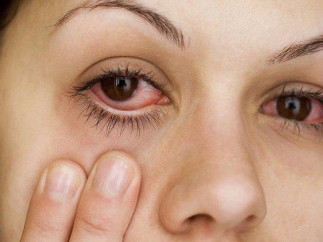 Nhận biết và điều trị u mềm lây tránh nguy cơ lây nhiểm - Ảnh 3.