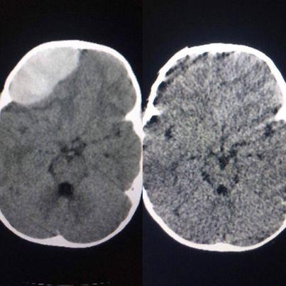 Không được chủ quan với chấn thương đầu ở trẻ - Ảnh 2.
