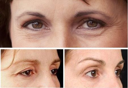 Phẫu thuật cắt da thừa mí mắt: Bí kíp trả lại nét thanh xuân? - Ảnh 4.