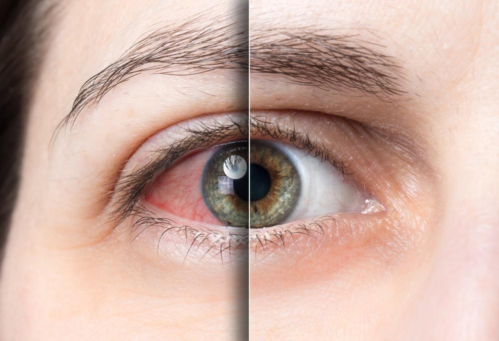 Nhận biết và xử trí khi bị khô mắt - Ảnh 2.