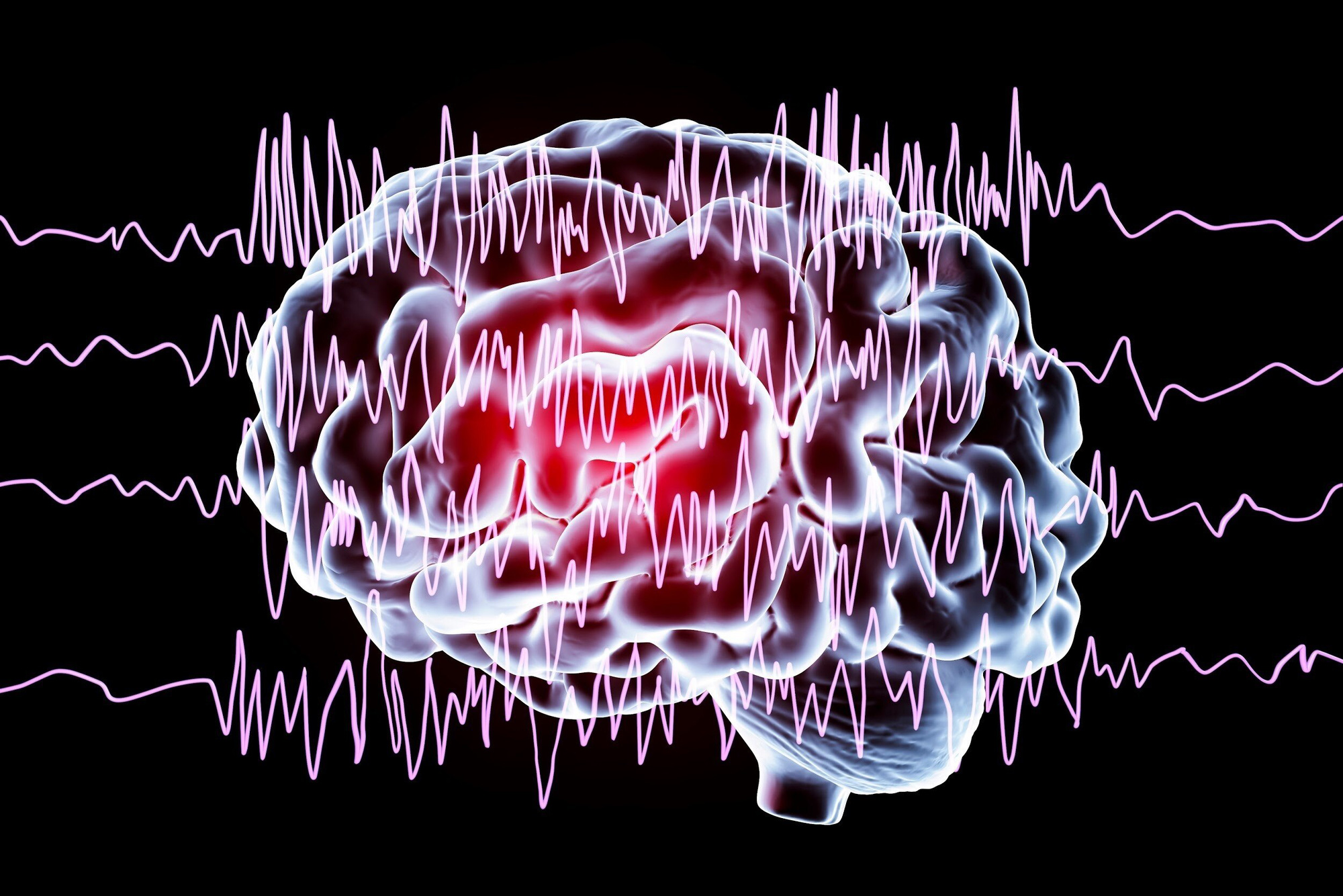 Bệnh động kinh là một bệnh lý mãn tính xảy ra do sự bất thường trong não bộ.