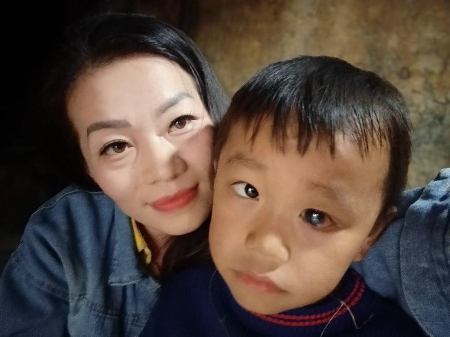 Thông tin mới nhất về sức khỏe của cậu bé dân tộc HMông nguy cơ mù hai mắt vì nhà nghèo - Ảnh 3.