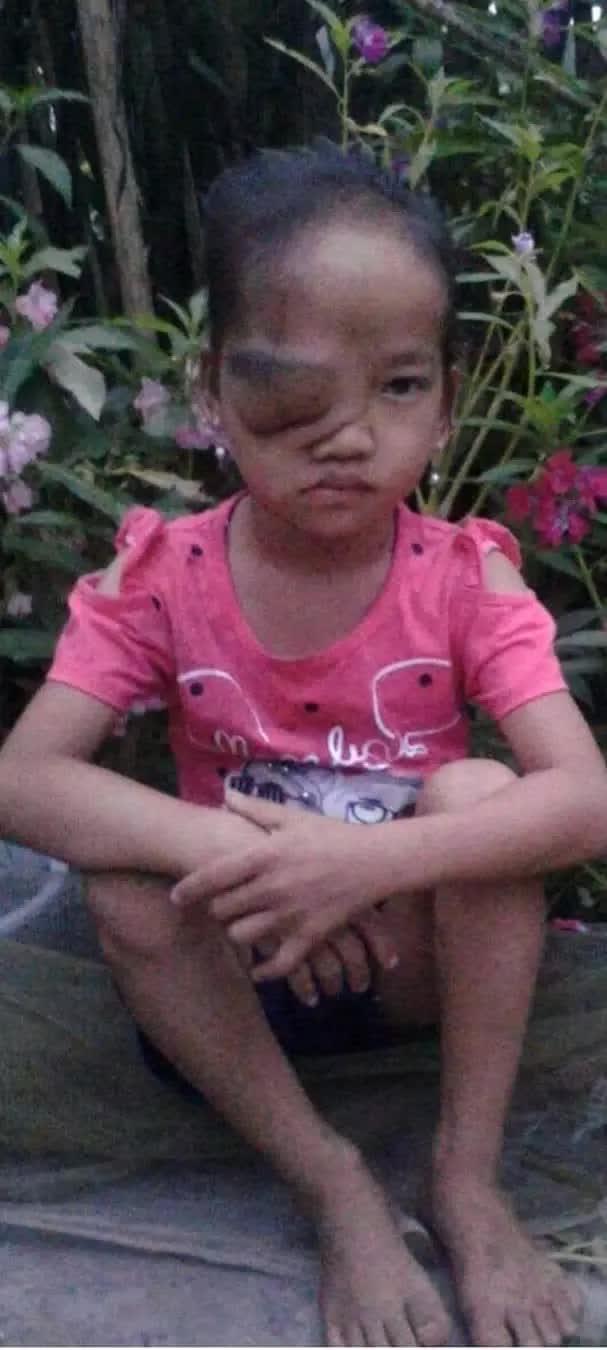 Khối u trên cơ thể ngày một lớn, bé gái dân tộc nghèo mong có tiền để được phẫu thuật sớm - Ảnh 2.