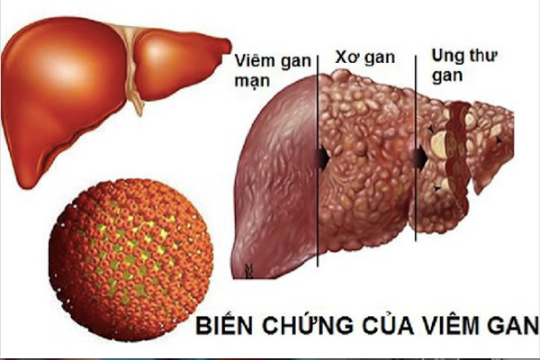 Người bệnh viêm gan B mạn tính nên ăn uống thế nào để phòng ngừa biến chứng? - Ảnh 2.