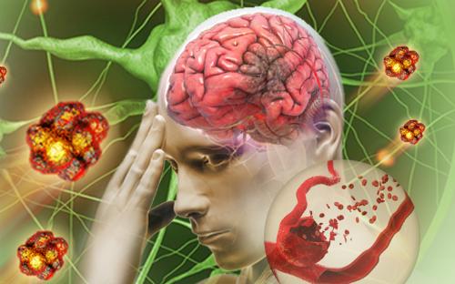 Đột quỵ hiểu đúng để phòng ngừa và điều trị hiệu quả - Ảnh 2.
