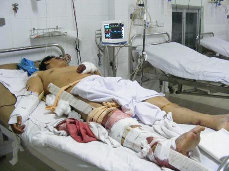Vụ tai nạn 7 người chết qua lời kể nạn nhân sống sót 2