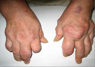 Thuốc Nam chữa thấp khớp 2