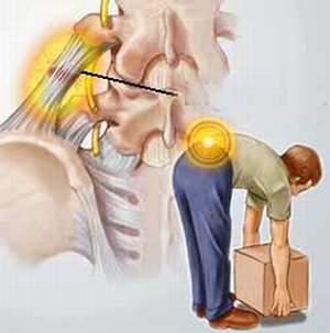 Thư giãn cột sống tránh đau lưng 1